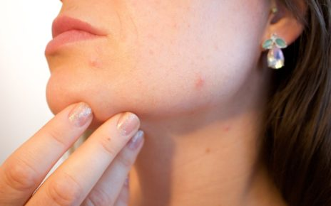 woman's face with acne